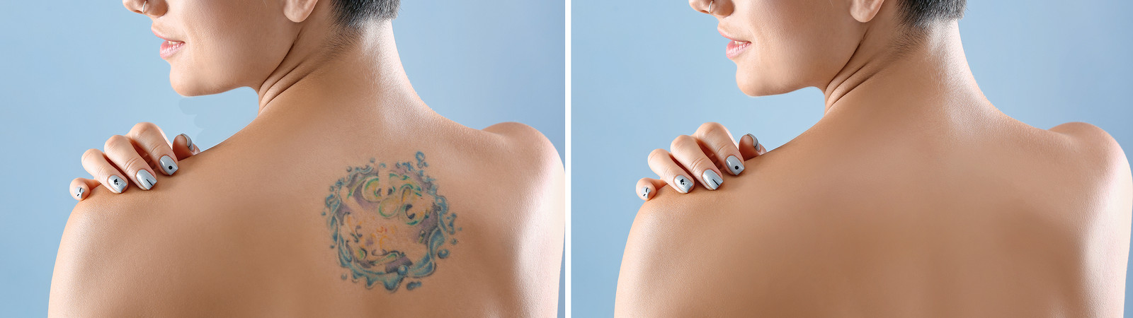 Laser Tattoo Removal | enlighten III<sup>™</sup>